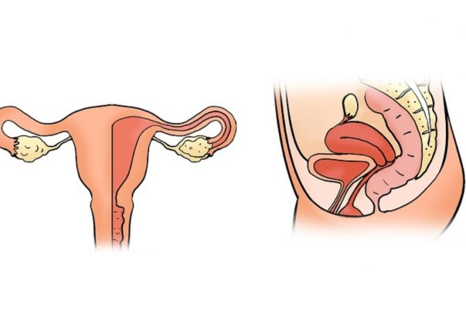 What is and when should a uterine fibroid be removed?