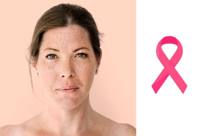 Tratamiento quirúrgico del cáncer de mama